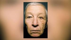 Воздействие-солнечных-лучей-на-кожу-лица