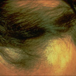 Причины-выпадения-волос-у-мужчин