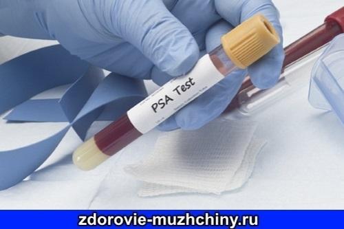 Как снизить ПСА в крови