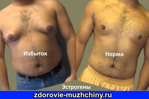 Эстрогены у мужчин
