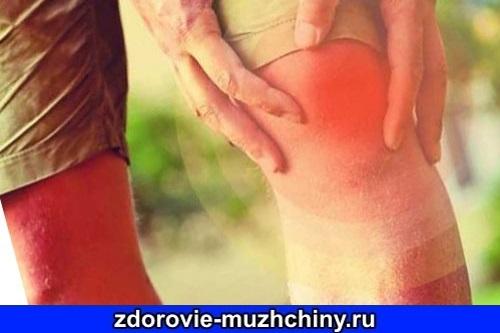 Артрит может быть системным заболеванием