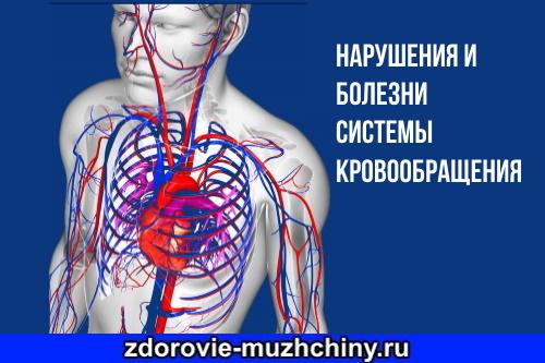 Болезни-системы-кровообращения.jpg