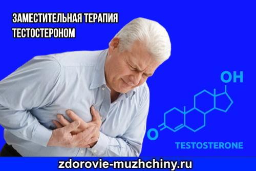Заместительная-терапия-тестостероном
