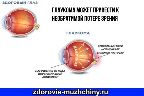 Повышенное глазное давление