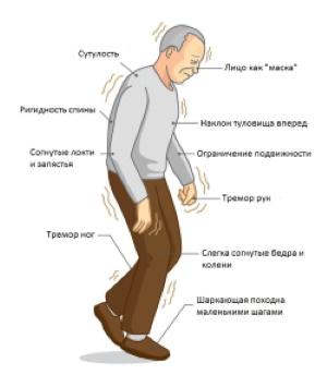 Болезнь-Паркинсона.jpg