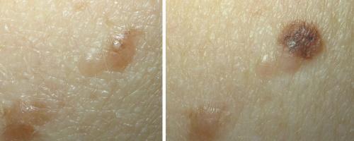 Развитие-меланомы-между-двумя-проверками-кожи