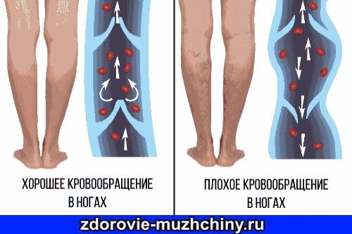Плохое-кровообращение-в-ногах.jpg